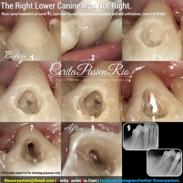 dokter gigi rio spesialis konservasi gigi jakarta indonesia perawatan saluran akar endodontic protaper 3m tambalan estetik kosmetik pulpa dentin email (15)