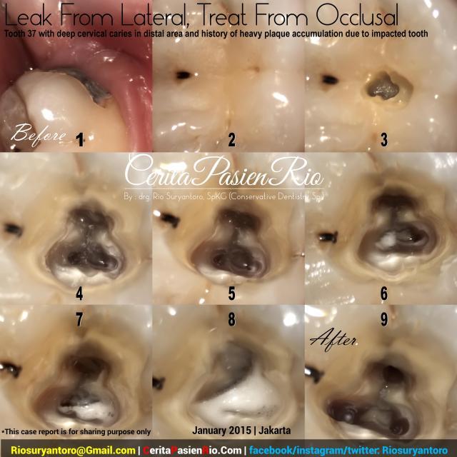 dokter gigi rio spesialis konservasi gigi jakarta indonesia perawatan saluran akar endodontic protaper 3m tambalan estetik kosmetik pulpa dentin email (17)
