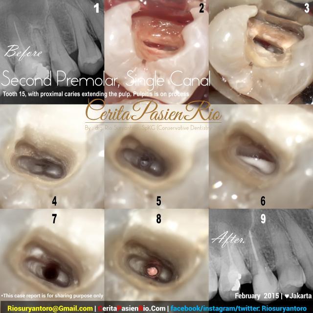 dokter gigi rio suryantoro spesialis konservasi gigi bu retno simple premolar root canal treatment