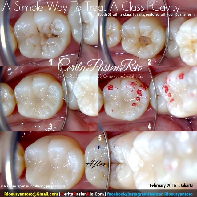dokter gigi rio suryantoro spesialis konservasi gigi resin komposit kelas 1