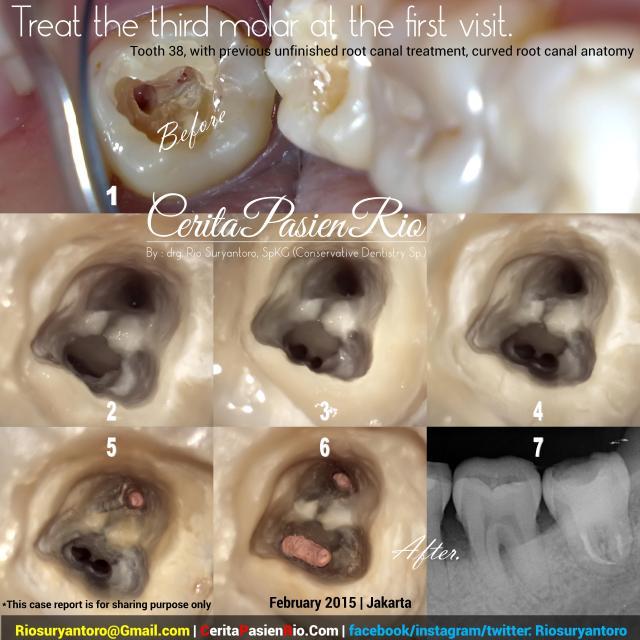 sapti psa 38 bengkok doker gigi rio suryantoro spesialis konservasi gigi perawatan saluran akar one visi