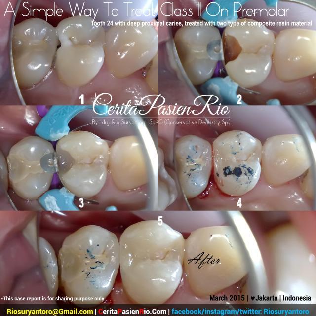 dokter gigi rio suryantoro spesialis konservasi gigi resin komposit kelas 2 3maret2015