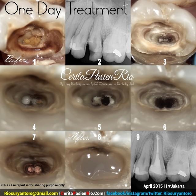 dokter gigi rio suryantoro spesialis konservasi gigi perawatan saluran akar