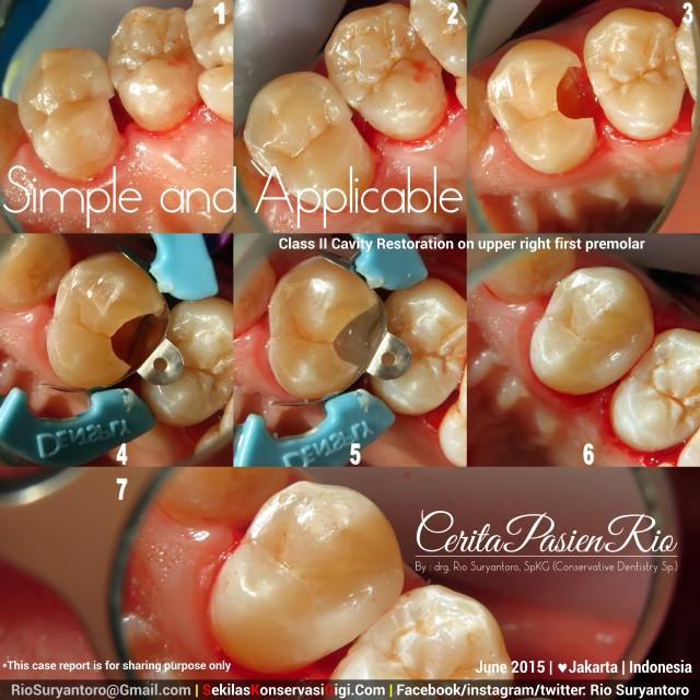 drg. Rio SpKG RK Mayapada gigi 14 kelas 2