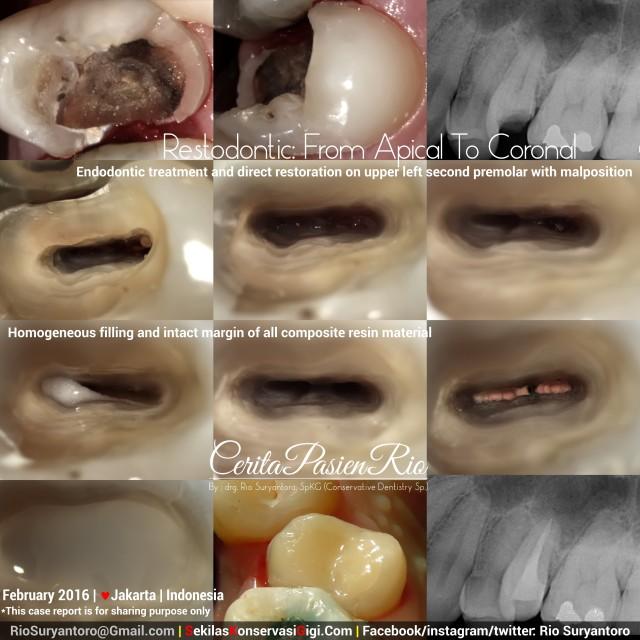 dokter gigi rio spesialis konservasi gigi sakit gigi