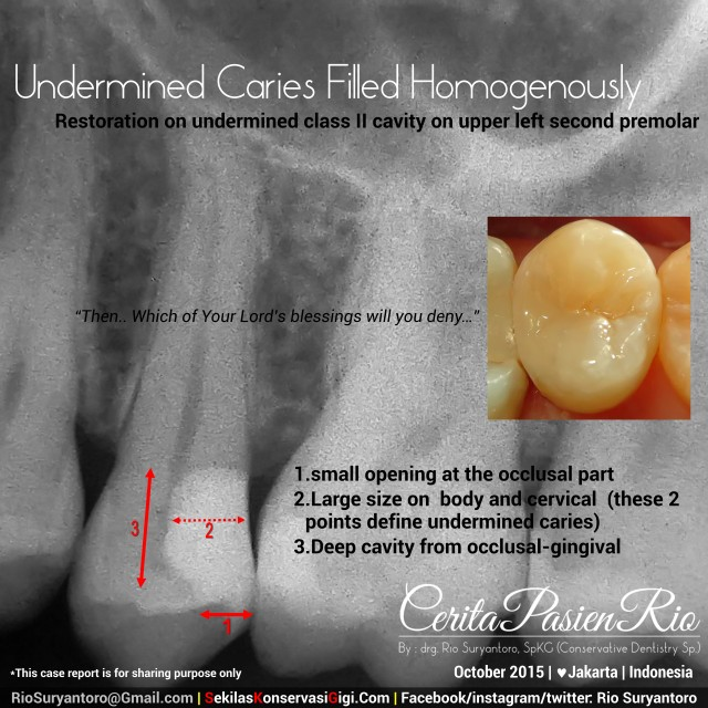 penambalan gigi sakit gigi dokter gigi spesialis konservasi gigi jakarta