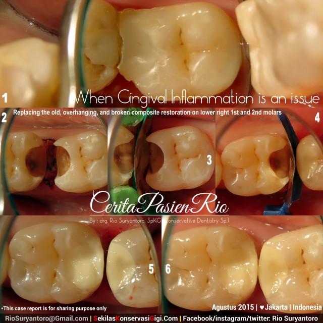 perawatan saluran akar sakit gigi ke dokter gigi rio spesialis konseravasi gigi yuk