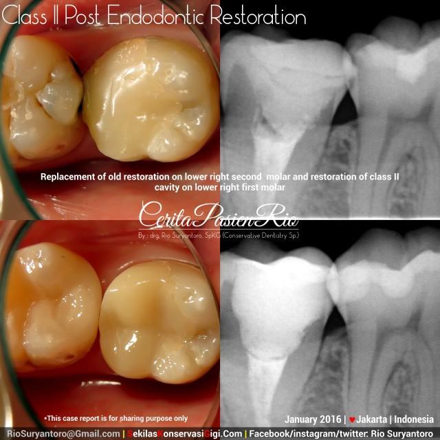 sakit gigi perawatan saluran akar penambalan karies gigi restodontic endodontic