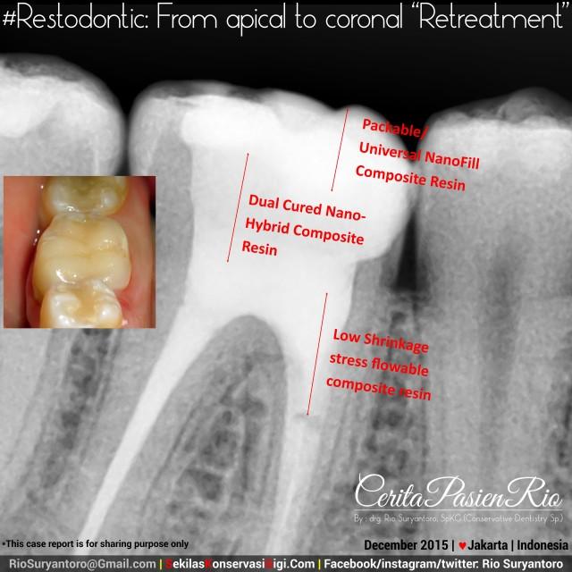 dokter gigi sakit gigi spesialis konservasi gigi perawatan saluran akar