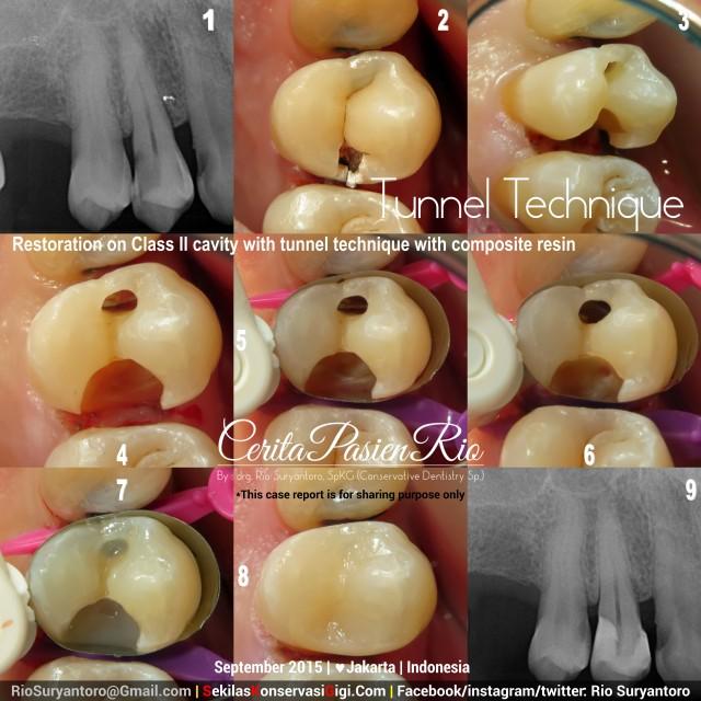 sakit gigi ke dokter gigi spesialis konservasi gigi jakarta lho
