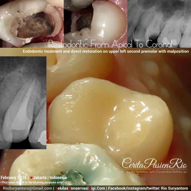 spesialis konservasi gigi dokter gigi rio suryantoro restodontic