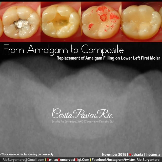 sakit gigi ke dokter gigi spesialis konservasi gigi perawatan saluran akar gigi tambal gigi
