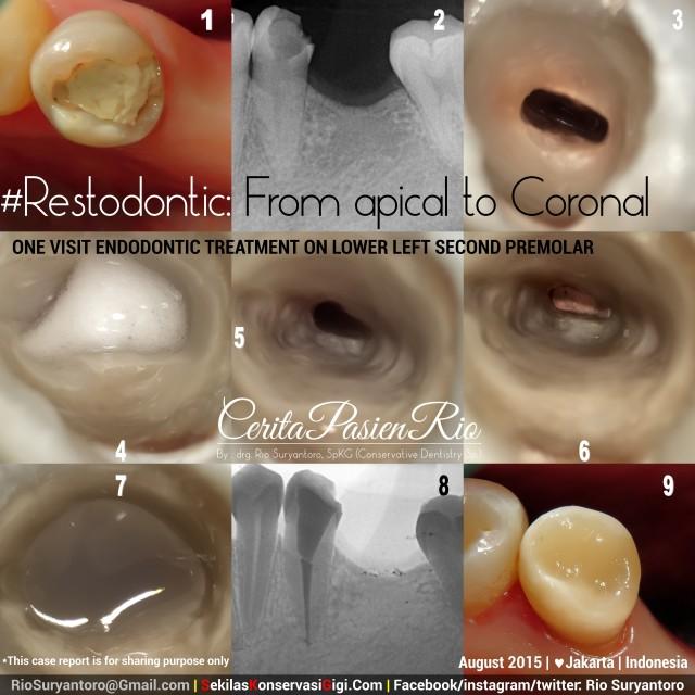 sakit gigi ke dokter gigi spesialis konservasi gigi