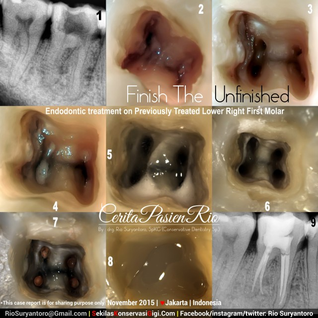 sakit gigi dokter gigi spesialis konservasi gigi perawatan akar gigi tambal jakarta