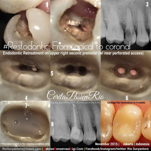 perawatan saluran akar di spesialis konservasi gigi jakarta