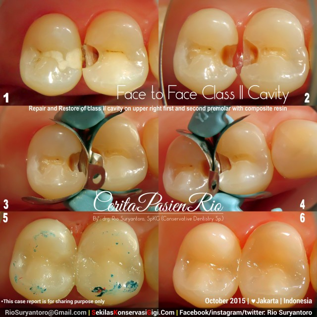 sakit gigi tambal gigi perawatan akar gigi spesialis konservasi gigi