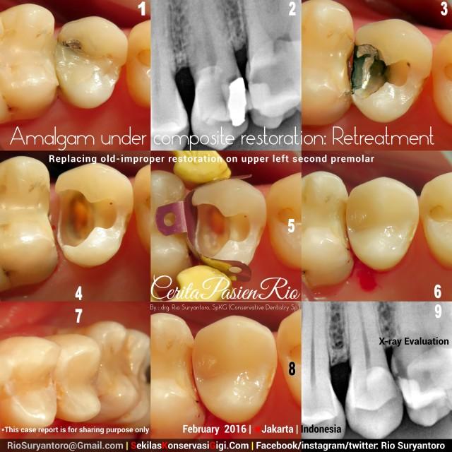 dokter gigi spesialis konservasi gigi perawatan saluran akar tambalan estetik