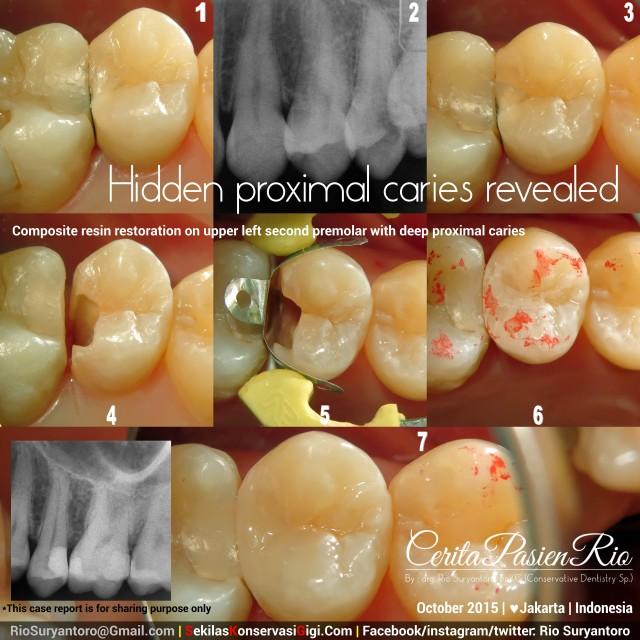 sakit gigi ke dokter gigi jakarta spesialis konservasi gigi