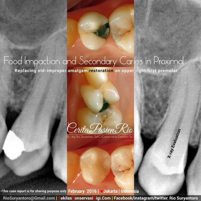 sakit gigi perawatan saluran akar resin komposit
