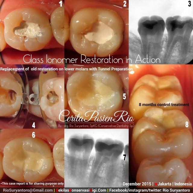 perawatan saluran akar tambalan gigi spesialis konservasi gigi dokter gigi jakarta