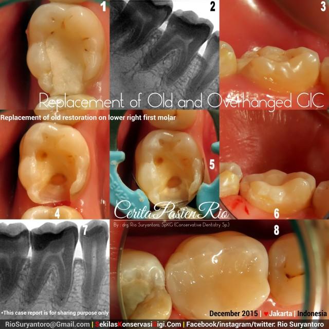 sakit gigi spesialis konservasi gigi dokter gigi jakarta perawatan saluran akar