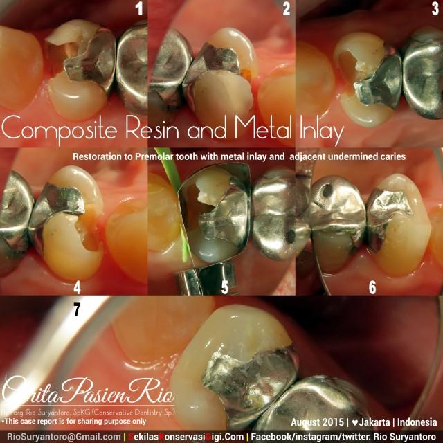 dokter gigi rio spesialis konservasi sakit gigi perawatan saluran akar