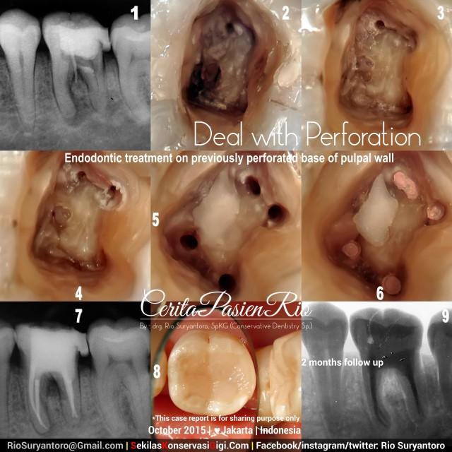 dokter gigi spesialis konservasi gigi jakarta sakit gigi tambal gigi