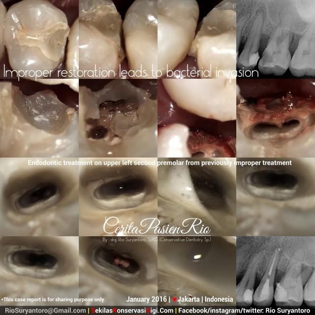 sakit gigi dokter gigi spesialis konservasi gigi jakarta perawatan saluran akar