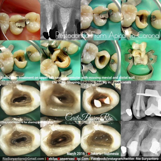 dokter gigi rio spesialis konservasi gigi jakarta anita psa maret oke kelas 2
