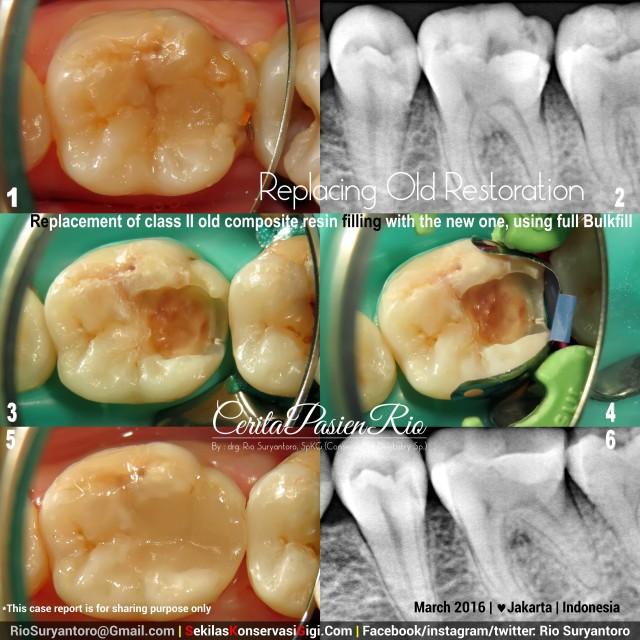 dokter gigi rio spesialis konservasi gigi jakarta paling bagus