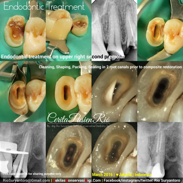 dokter gigi rio suryantoro spesialis konservasi gigi 15 all care pondok indah bagus sakit gigi