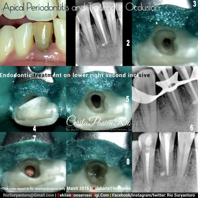 dokter gigi rio suryantoro spesialis konservasi gigi jakarta bagus estetika luke maret