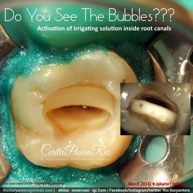 dokter gigi rio suryantoro spesialis konservasi gigi jakarta hebat mengobati sakit gigi
