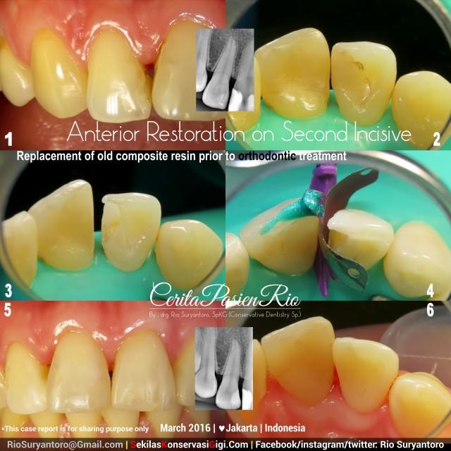 drg. Rio, SpKG yem kelas 4 slipi bulkfill dokter gigi spesialis konservasi gigi di  jakarta indonesia
