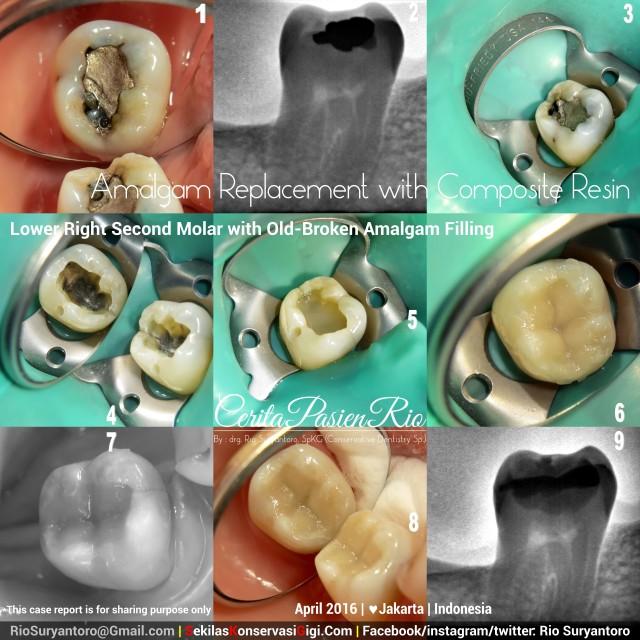 dokter gigi rio suryantoro spesialis konservasi gigi jakarta april eem slipi terbaik posterior dari amalgam