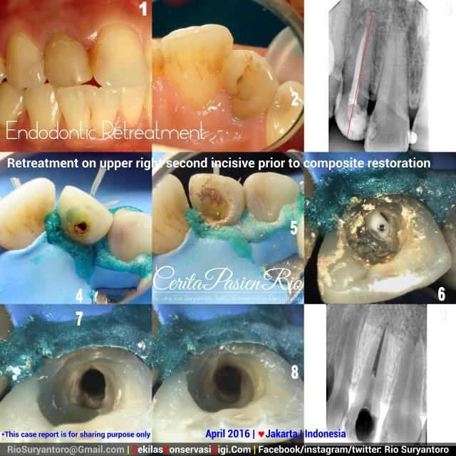 dokter gigi rio suryantoro spesialis konservasi gigi jakarta dessy april gigi anterior