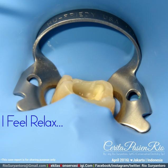 dokter gigi rio suryantoro spesialis konservasi gigi jakarta relaxing