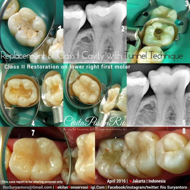 dokter gigi rio spesialis konservasi gigi jakarta gigi geraham TUNNEL TECHNIQUE SLIPI april