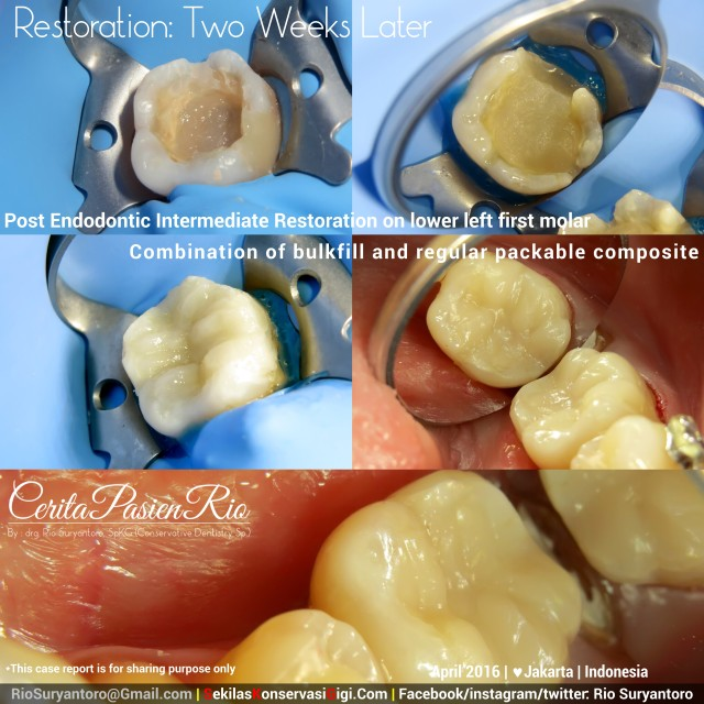 dokter gigi rio suryantoro spesialis konservasi gigi 36 post endodontik perawatan saluran akar slipi