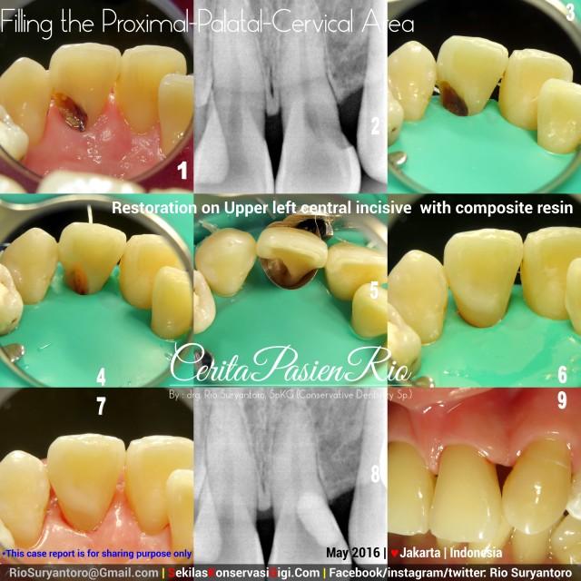 dokter gigi rio suryantoro spesialis konservasi gigi jakarta mei novi slipi anterior 21