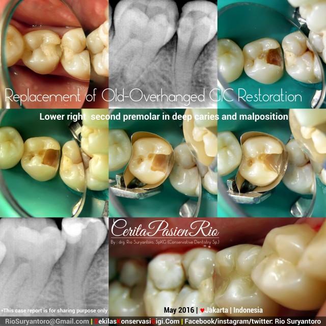 dokter gigi rio suryantoro spesialis konservasi gigi terbaik jakarta NS 45mei slipi