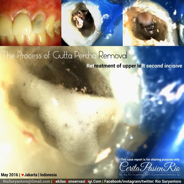dokter gigi rio suryantoro spesialis konservasi gigi terbaik jakarta Ali mei PI awal