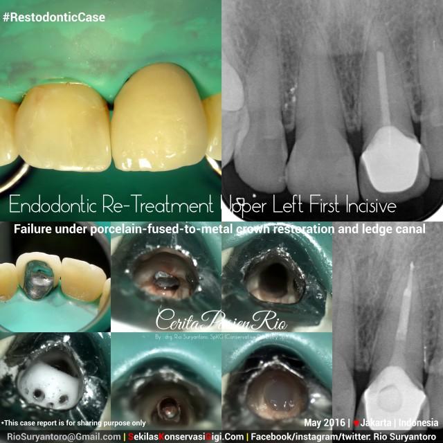 dokter gigi rio suryantoro spesialis konservasi gigi terbaik jakarta dia psa 21 ok