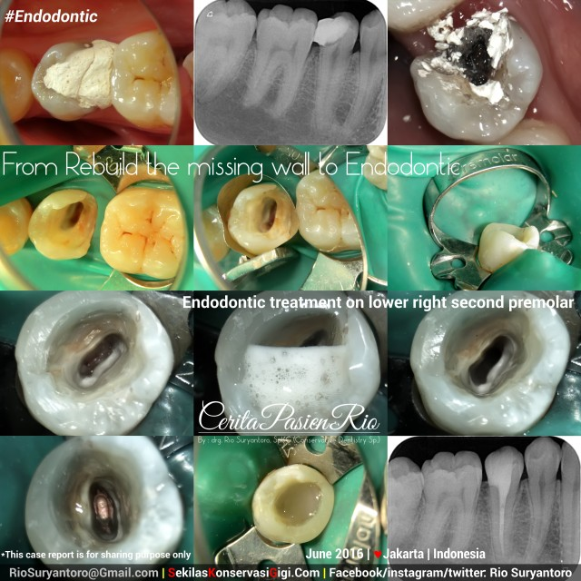fig 1. Previous endodontic treatment which was done 1 week earlier. (Case 93)