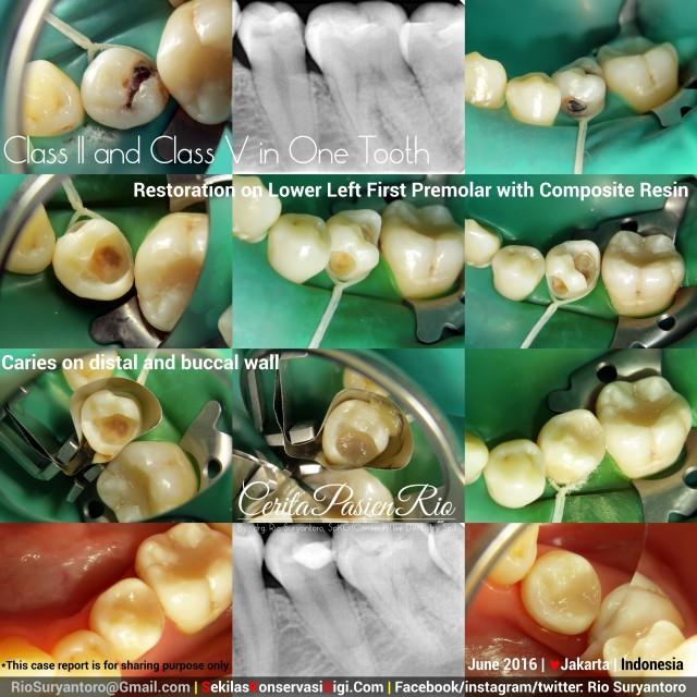 dokter gigi rio suryantoro spesialis konservasi gigi terbaik jakarta tambal resin komposit 35 jun lulu