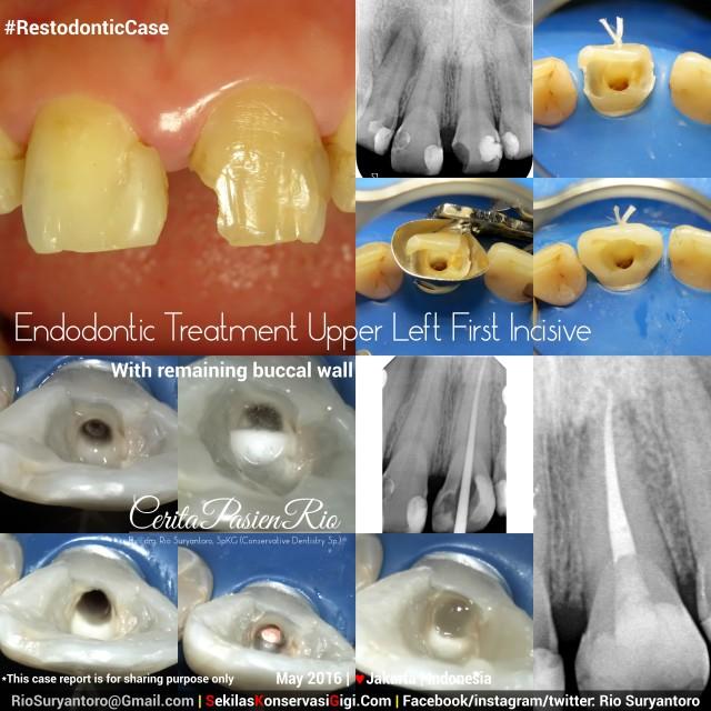 spesialis konservasi jakarta perawatan endo incisive 2 treatment PI
