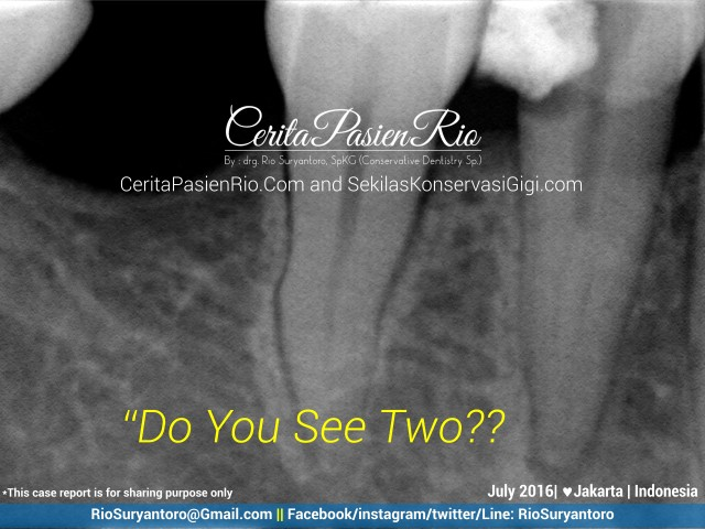 dokter gigi rio suryantoro spesialis konservasi gigi jakarta rare 44 juli