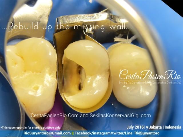 dokter gigi rio suryantoro spesialis konservasi gigi jakarta relax jul harry