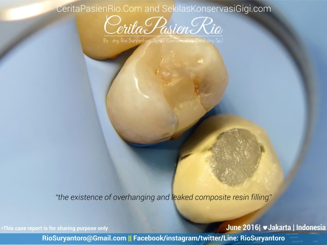 dokter gigi rio suryantoro spesialis konservasi gigi jakarta relax jun (2)