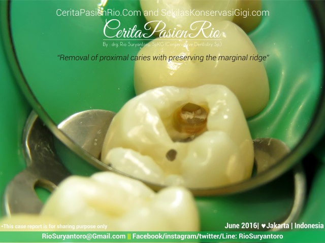 dokter gigi rio suryantoro spesialis konservasi gigi jakarta relax tunnel jun
